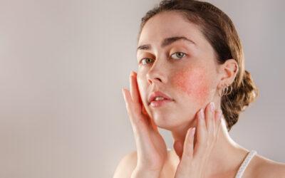 Rosacea – eine chronische Hautkrankheit