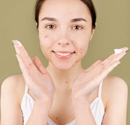 Pickel im Sommer: So können Sie Hautunreinheiten vorbeugen